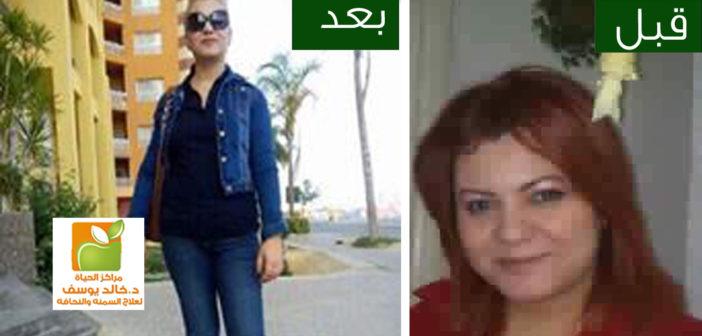 قصة نجاح مدام زليخه مع الدكتور خالد يوسف